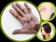 Vitiligo Skin Disorder
